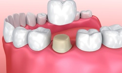 3D image of dental crown