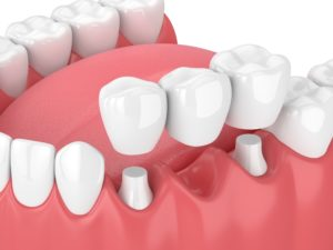 model of dental bridge