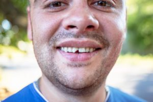 man with a chipped tooth in cleveland